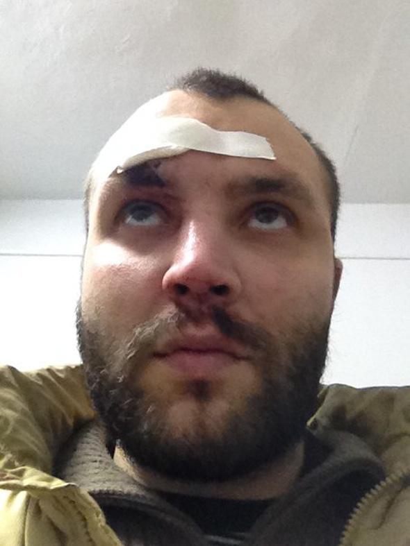 По версии лидера движения «За права рабочих» Марины Воробьевой, пришедшие без приглашения коммуни