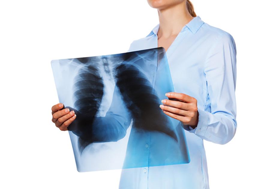 В Челябинской области за первое полугодие 2018 года выявлено на 80 больных туберкулезом меньше, ч