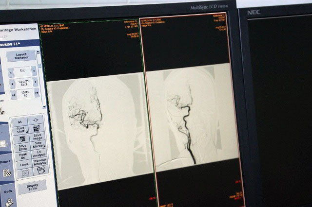В отделении нейрохирургии № 2 челябинской областной клинической больницы № 3 активно внедряется т
