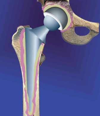 В случае перелома плеча, колена или шейки бедра, сами кости правильно