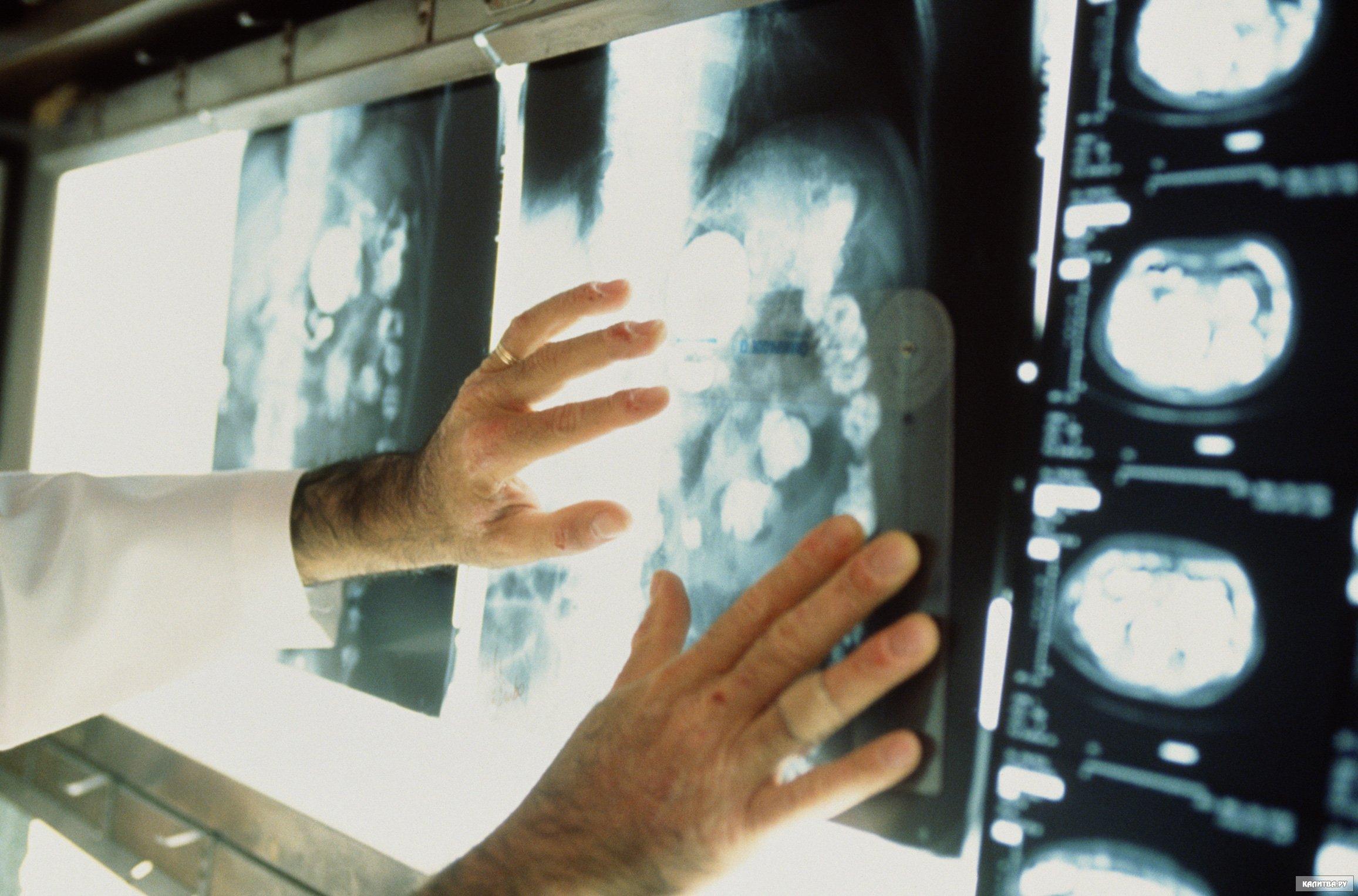 Южноуральские медики ежегодно обнаруживают у жителей региона около 14-ти тысяч злокачественных но
