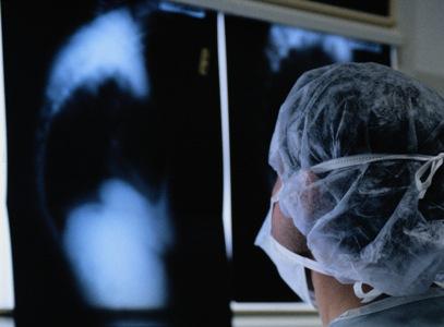 В 2010-м году в Челябинской области было зарегистрировано 2 тысячи 453 случая активного туберкулё